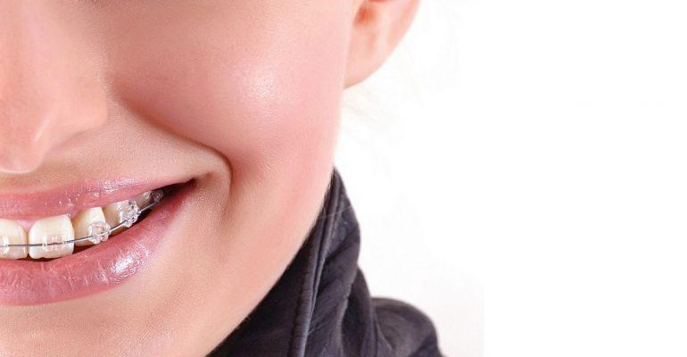 Elige-el-tipo-de-ortodoncia-más-adecuado-a-tus-necesidades-1920