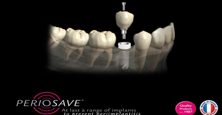 Implantes-dentales-de-zirconio,-la-mejor-elección-1920