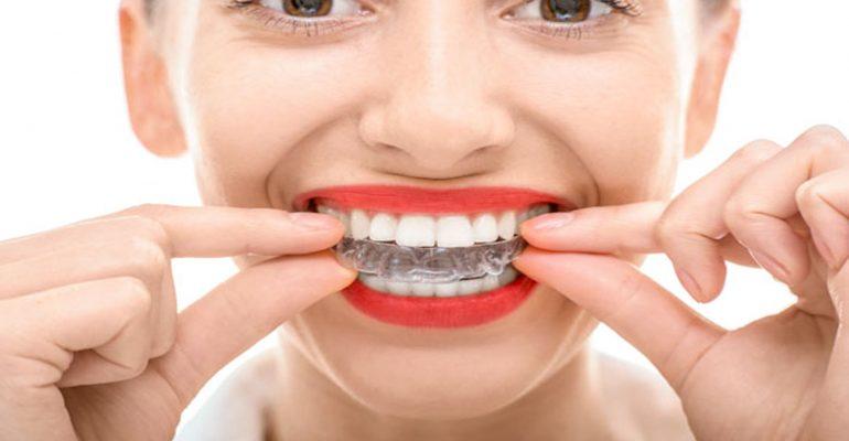Geniova,-una-ortodoncia-invisible-con-grandes-ventajes-1920