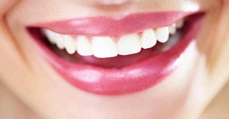 Quieres-lucir-una-sonrisa-más-blanca-y-brillante-1920
