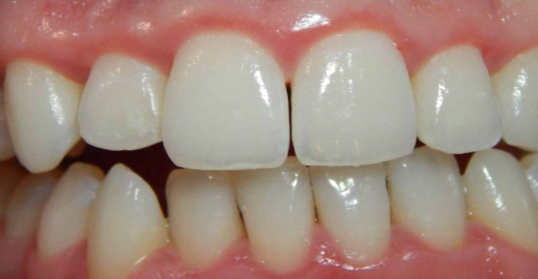 que-es-la-periodoncia-1920