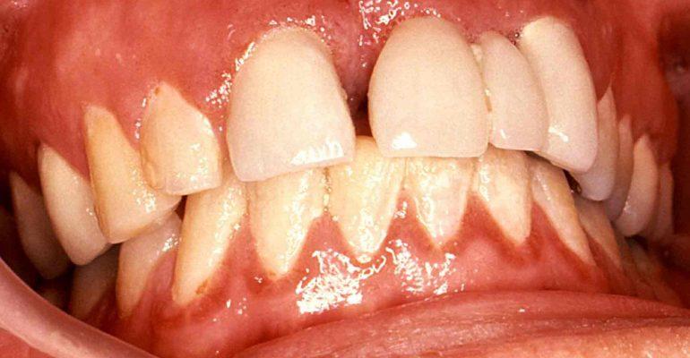 diastema-dental-el-dilema-de-los-dientes-separados-1920