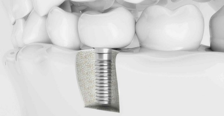 consejos-para-el-cuidado-de-los-implantes-1920