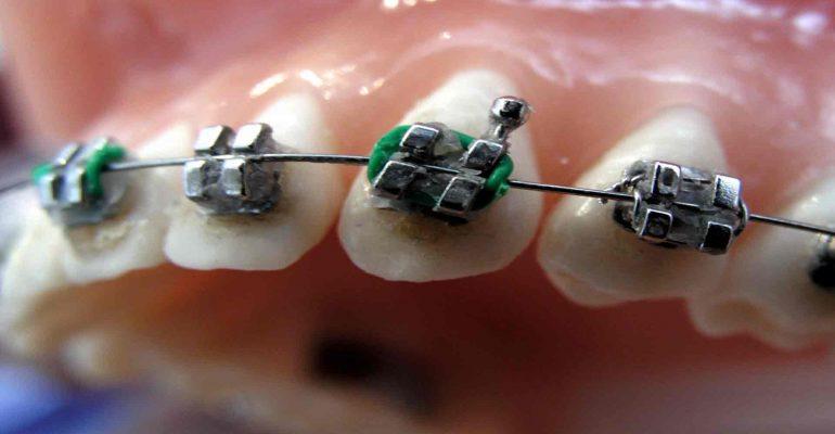 La-ortodoncia,-efectiva-y-sin-límite-de-edad-1920