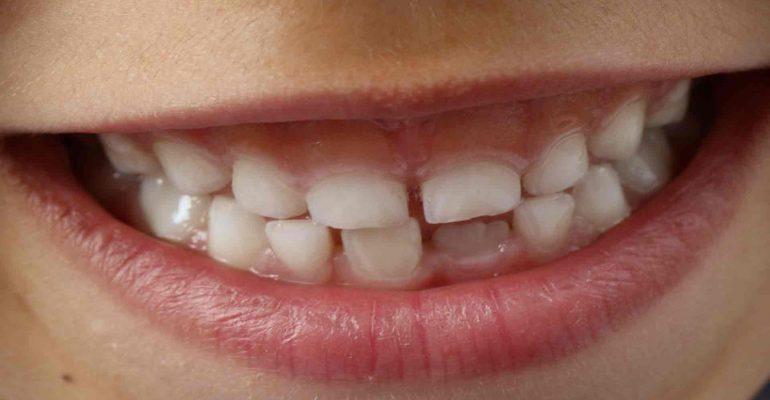 Los-3-tipos-de-prevencion-en-odontologia-1920