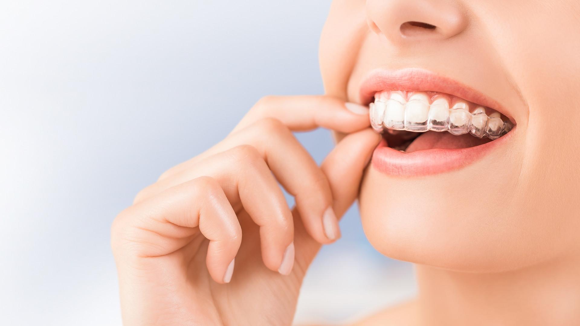 ortodoncia-estetica-slide